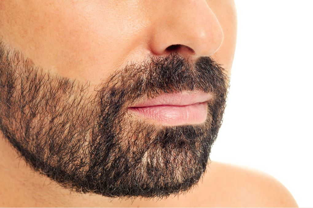 electrolysis-on-males-beard-in-san-diego